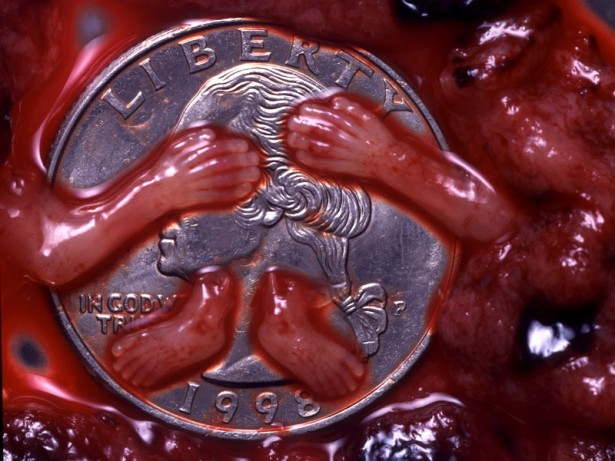 9 Week Abortion (01)