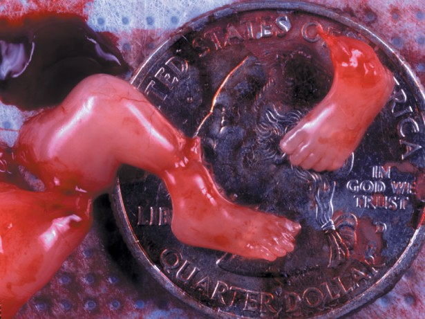 10 Week Abortion (03)