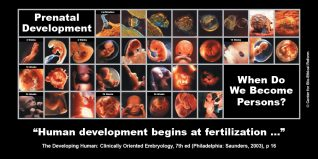 "GAP Sign - ""Prenatal Development"""